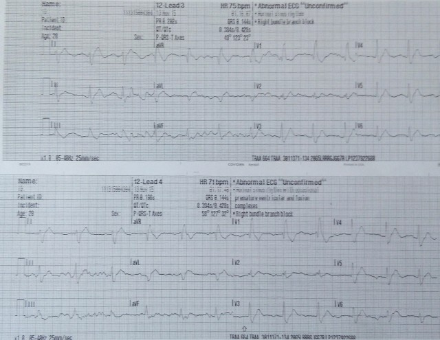20YOM Sustained ROSC