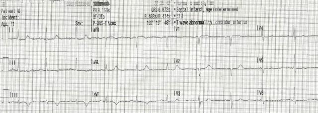 70YOF EKG1