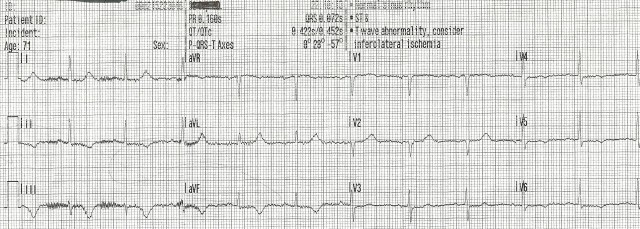 70YOF EKG2