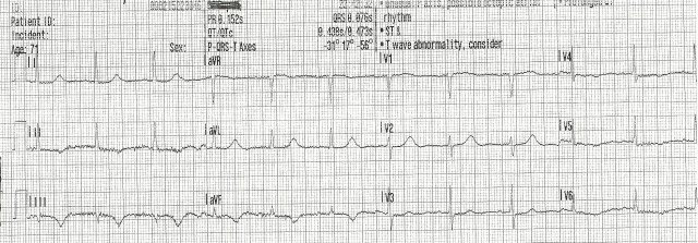 70YOF EKG3