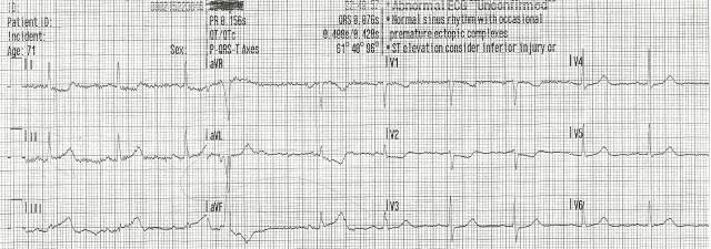 70YOF EKG4