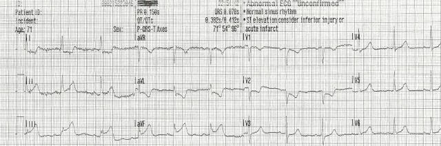 70YOF EKG5