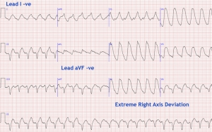 ecg - extreme right axis deviation or indeterminate axis