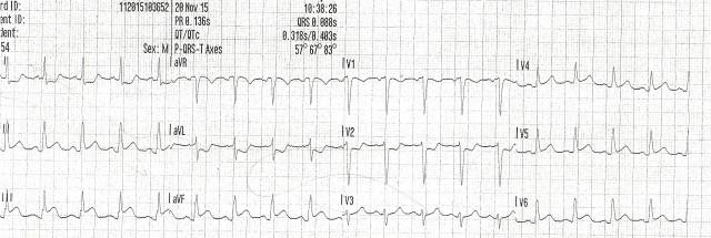 54YOM EKG #1