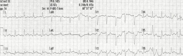 54YOM EKG #2