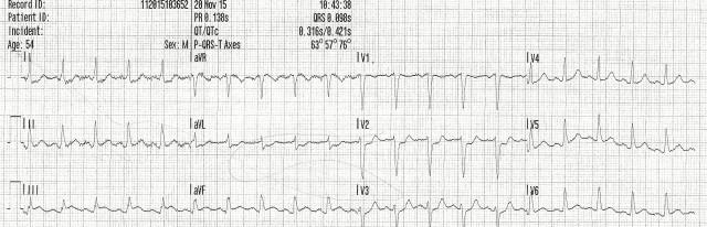 54YOM EKG #3