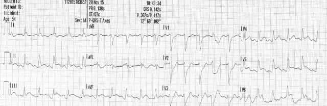 54YOM EKG #4