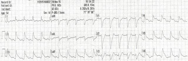 54YOM EKG #6