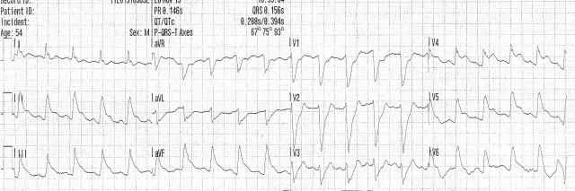 54YOM EKG #7