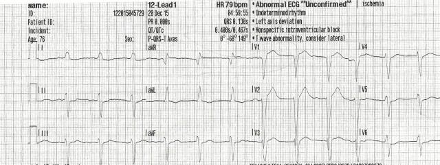75YOM EKG #1