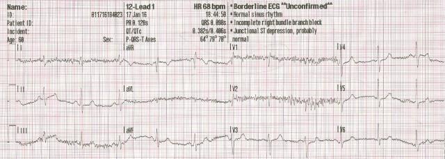 65YOM EKG #1 001
