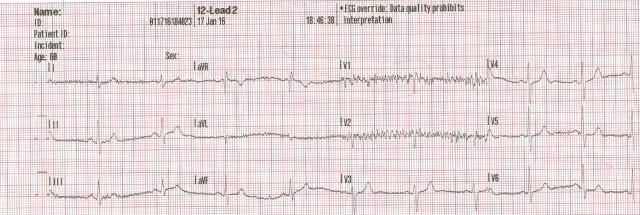 65YOM EKG# 2 001