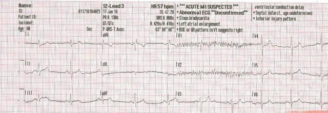 65YOM EKG #3 001