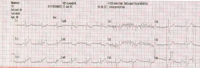 65yom EKG #4 001.jpg