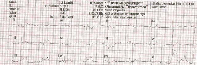 65yom EKG #5 001.jpg