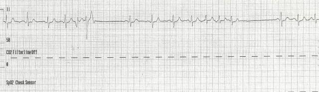 85yof dizzy EKG 1 001