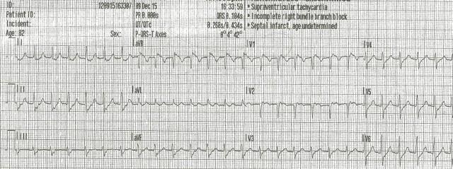 85yof dizzy EKG 2 001