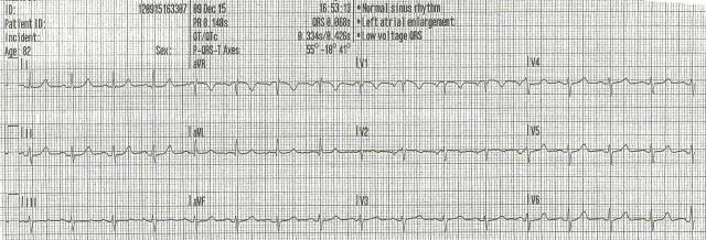 EKG 3 85 yof 001