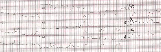 EKG Case Study #7- 15 Lead 001