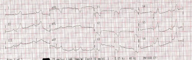 EKG Case Study #7- 1st 12 Lead 001