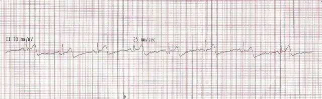 EKG Case Study #7 5-Lead