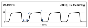 Normal Waveform Capnography