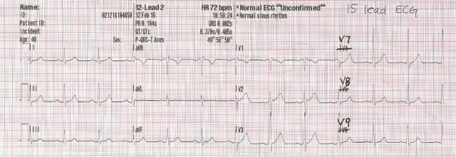 15 EKG labeling 001