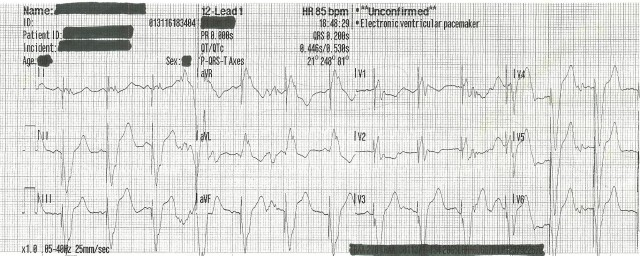 70YOM Feb Case Study 001