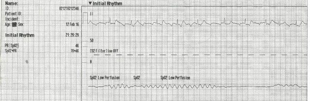 85yof DNR Initial Rhythm 001