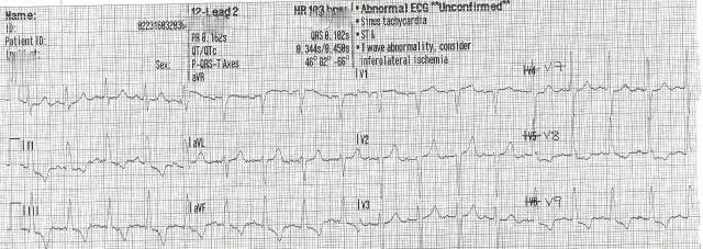 EKG Case Study #10- 15 Lead 001