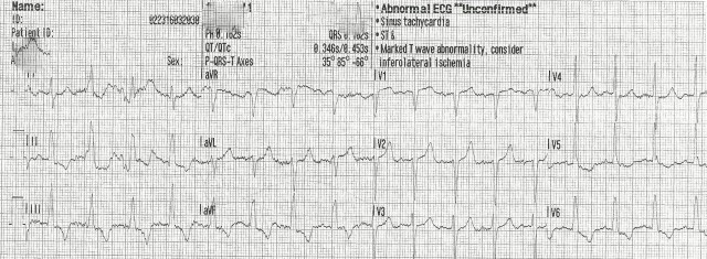 EKG Case Study #10- First 12 Lead 001