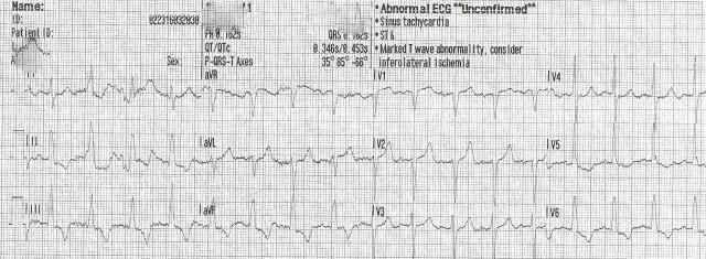 EKG Case Study #10- First 12 Lead 001