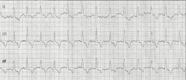 EKG Case Study #10- Inferior Lead View 001
