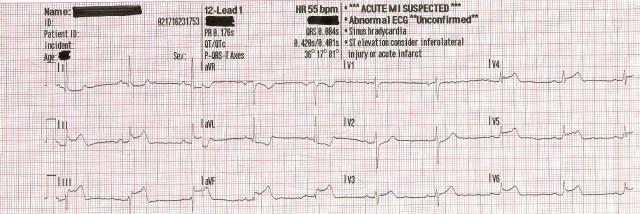 EKG Case Study #11 001.jpg