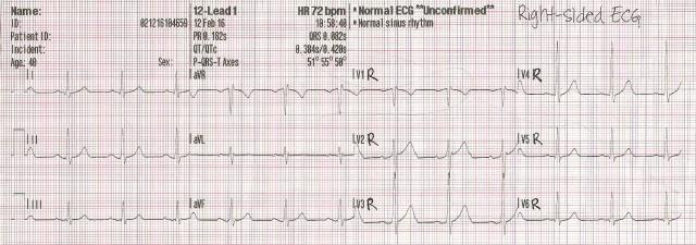 R-side EKG 001