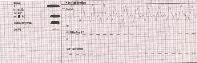 ECS13 Initial Rhythm 001