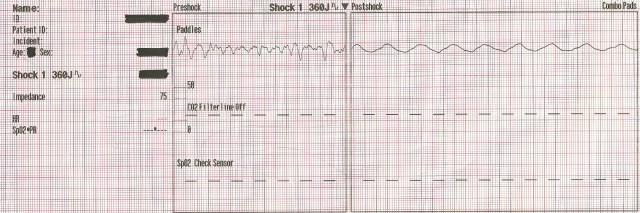 EKG Case Study #12- 55YOM 1st Defib 001