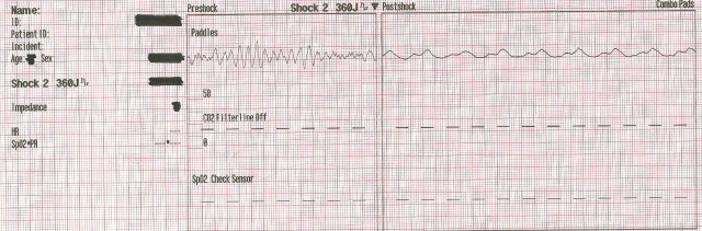 EKG Case Study #12- 55YOM 2nd Defib 001
