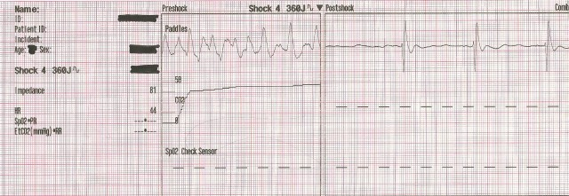 EKG Case Study #12- 55YOM 4th Defib 001