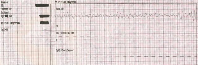 EKG Case Study #12- 55YOM Initial Rhythm 001