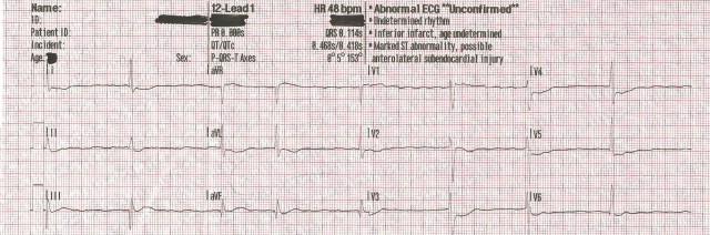 EKG Case Study #12- 55YOM ROSC 12-Lead #1 001