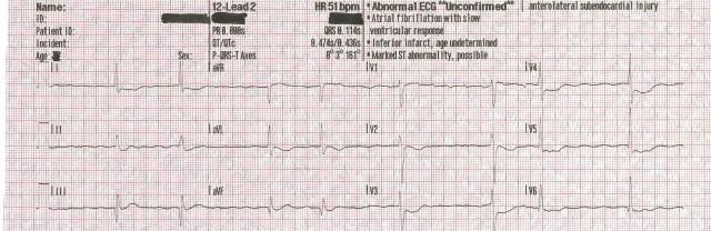 EKG Case Study #12- 55YOM ROSC 12-Lead #2