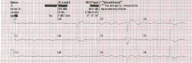 EKG Case Study #12- 55YOM ROSC 12-Lead #3 001