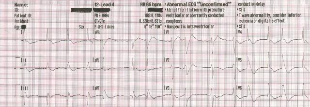 EKG Case Study #12- 55YOM ROSC 12-Lead #4 001
