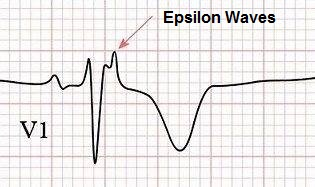 Epsilon Waves