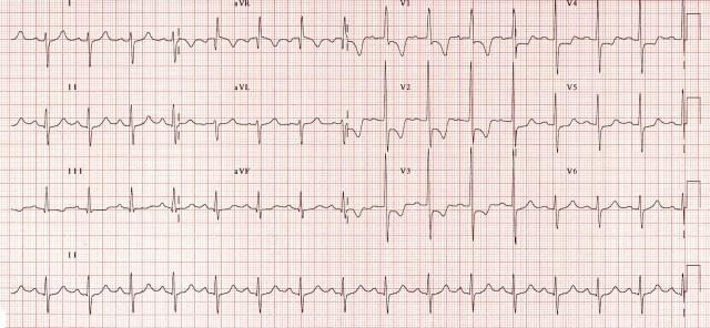 Right Ventricular Strain
